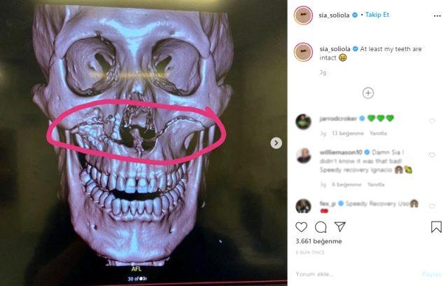 Maçta rakibiyle çarpışan rugby oyuncusu Sia Soliola'nın, kafatası kırıldı