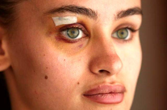 Güvenlik görevlileri tarafından darbedilen Ukraynalı model Daria Kyryliuk ilk kez konuştu