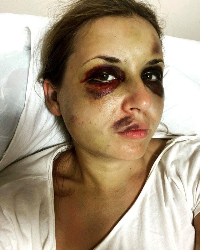 Ünlü sunucu Anastasia Lugova, oğlunun gözü önünde kendisine tecavüz etmeye çalışan kişinin şiddetine maruz kaldı