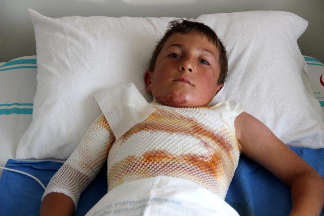 Gömleğindeki ipi yakmak isteyen çocuk kendini yaktı