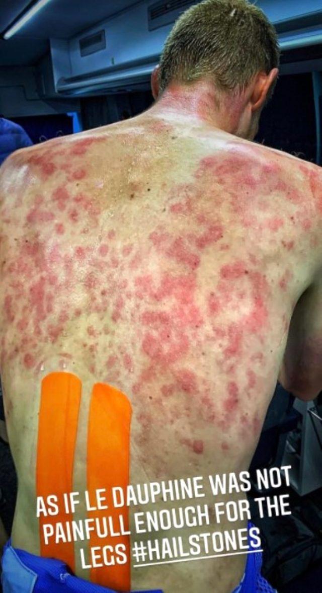 Dolu fırtınasına yakalanan bisikletçisi Tim Declerq'in sırtında oluşan morluklar korkuttu