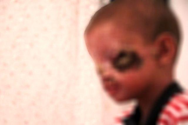 Cilt kanseri olduğu için güneşe çıkamayan 8 yaşındaki Salih'in tedavisi başladı