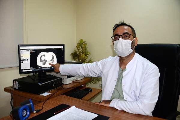 Koronavirüsle mücadele eden doktor başından geçenleri anlattı