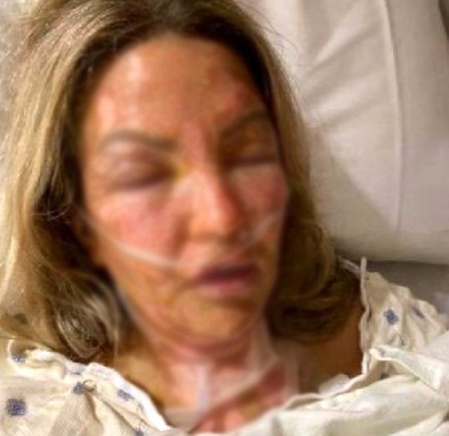 Yanan mum ile temas eden dezenfektan kutusu patladı, talihsiz kadın alevler içinde kaldı