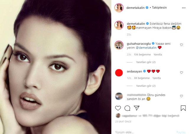Demet Akalın, estetiksiz halini ilk kez sosyal medya hesabından paylaştı
