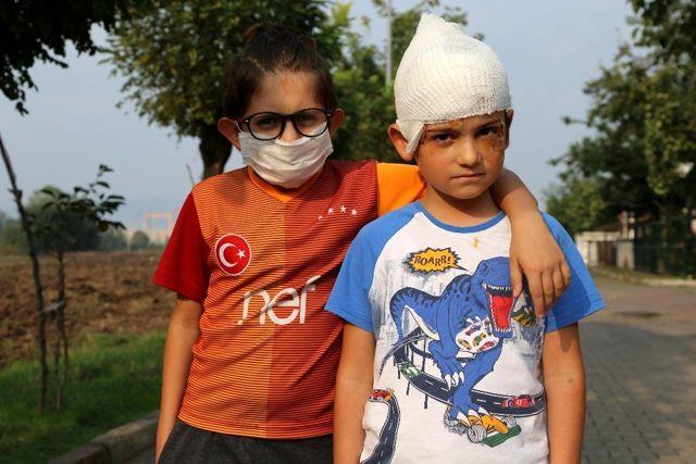 Sokak ortasında kangal dehşeti! Küçük Batuhan o anları anlattı: Bana saldırdı, ben de onun boğazını sıktım
