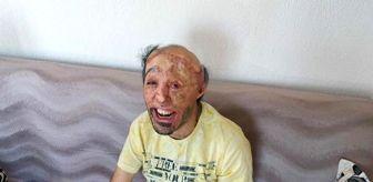 Mehmet Ali Durak: Son dakika haberleri! İlk ameliyatı olup iyileşti, sıradaki operasyonları bekliyor