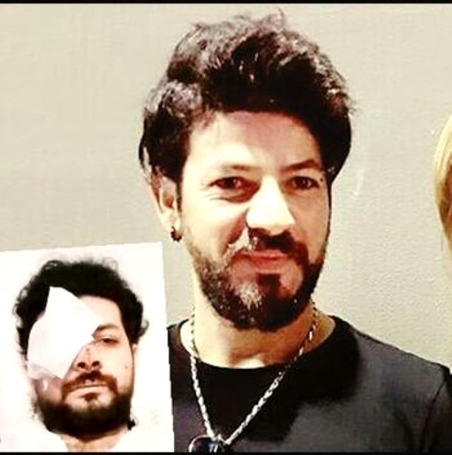 Genç müzisyen Şahan Dinç, maganda kurşunu yüzünden gözünü kaybetti