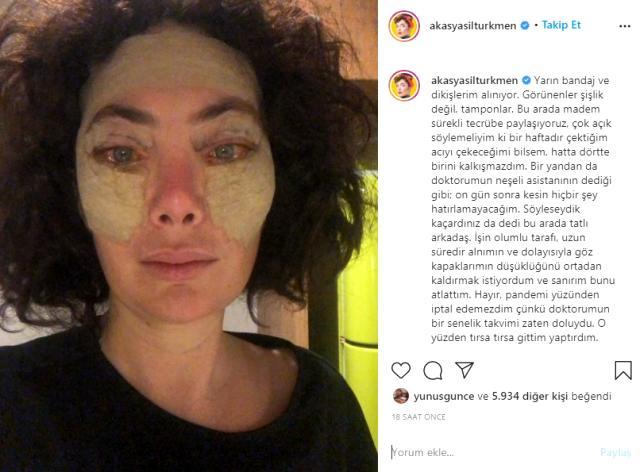 Kaş kaldırma estetiği yaptıran Akasya Asıltürkmen, yüzünün bandajlı halini paylaştı