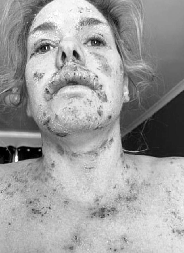 İşini kaybetti, aylarca evden çıkamadı! Egzama kremi tüm vücudunda yara çıkmasına neden oldu