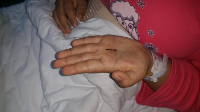 Genç kız, 1 yaşındayken yuttuğu toplu iğneden 17 yıl sonra kurtuldu