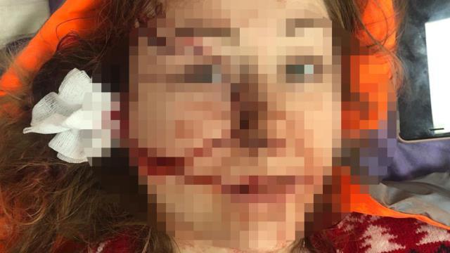 Saldırgan adam, boşanmak isteyen Ukraynalı eşi Anna Butim'in yüzünü falçatayla parçaladı