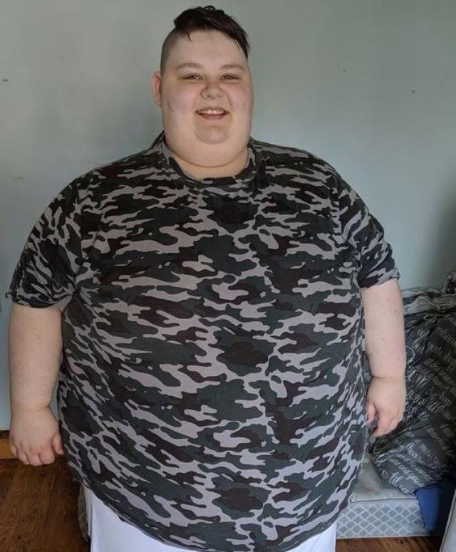 Cinsiyet değiştirmek için gittiği doktor, aşırı kilolarından dolayı 5-10 yıl içinde öleceğini söyledi