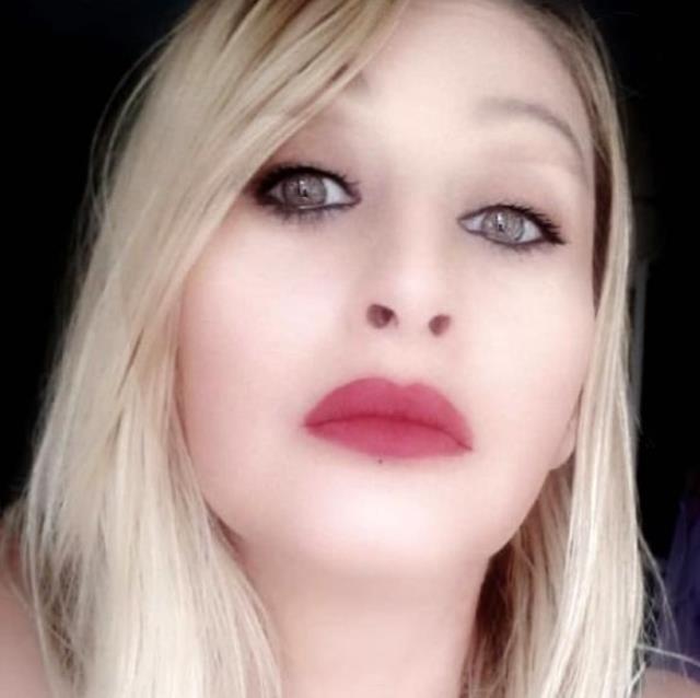 Estetik uğruna dudağını kaybeden Songül, doğal görünümüne kavuşacak