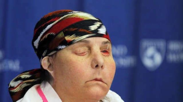 ABD'de iki kez yüz nakli yapılan kadın, ilk kez yeni yüzünü gösterdi