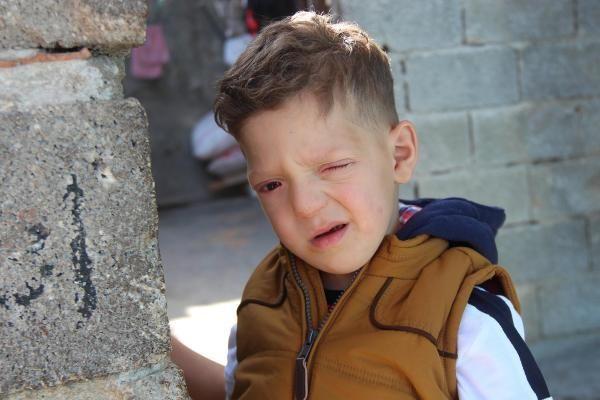 Suriyeli Ömer Cüneyd, her geçen gün görme yetisini kaybediyor