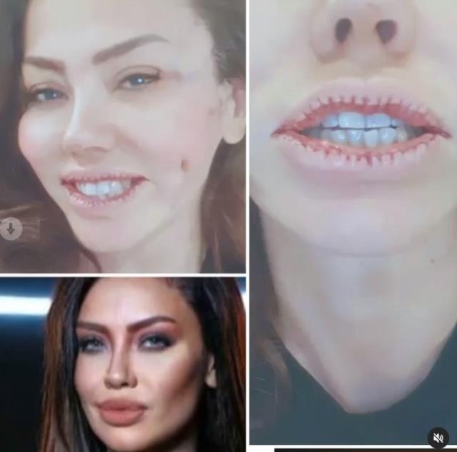 Ameliyat masasına yatan ünlü şarkıcı Lara, dudaklarını küçülttü