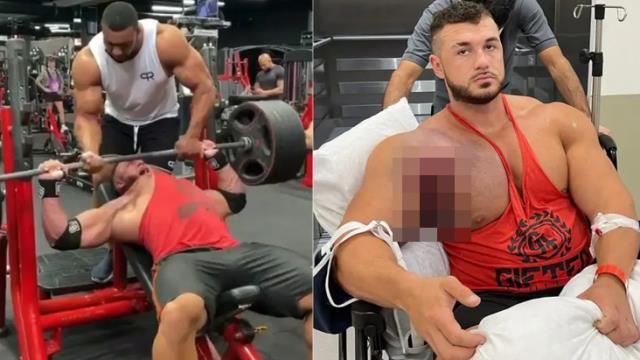 220 kilogram kaldırmaya çalışırken göğüs kası kemikten koptu