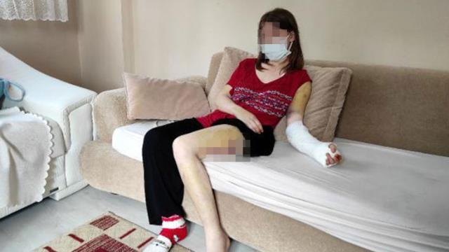 Erkek arkadaşının beyzbol sopasıyla dövdüğü kadın, korkunç geceyi anlattı