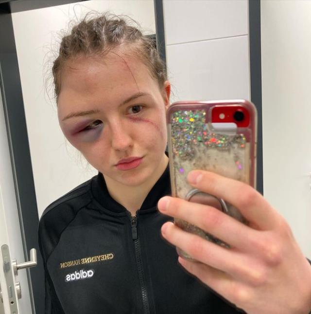 Kadınlar kemer maçında yüzü tanınmayacak hale gelen Alman boksör pes etmedi ve maçı kazandı