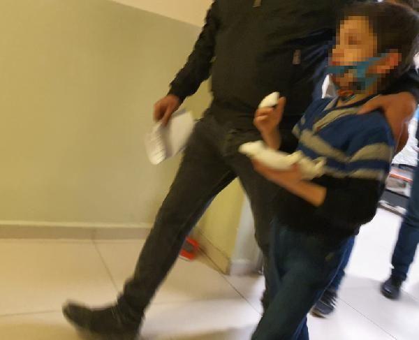 Parkta oyun oynayan SuriyeliAhmet'in parmağı koptu