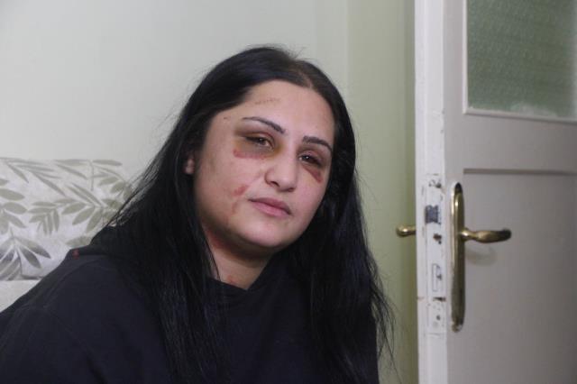 Eski eşini sokak ortasında döven Zarap: Öldürme niyetinde değildim