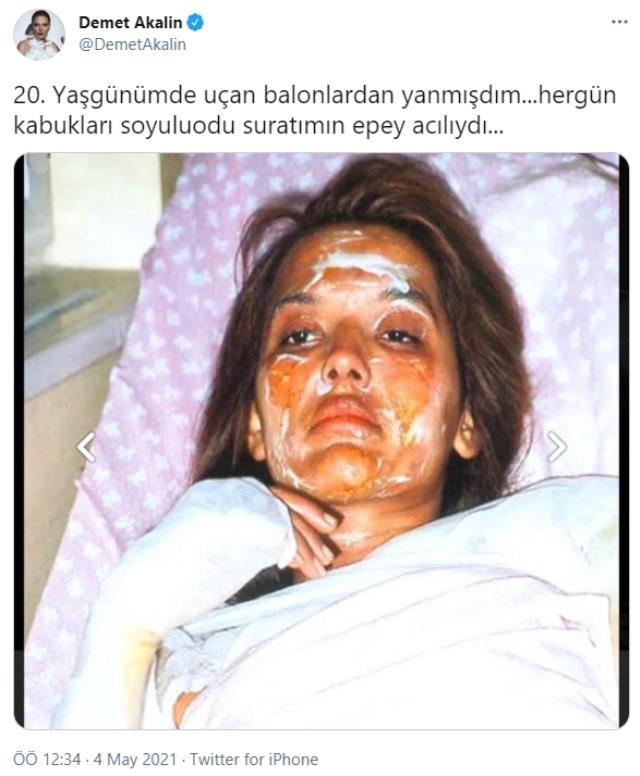 20'li yaşlar akımına dahil olan Demet Akalın, yüzünün yandığı bir pozunu paylaştı