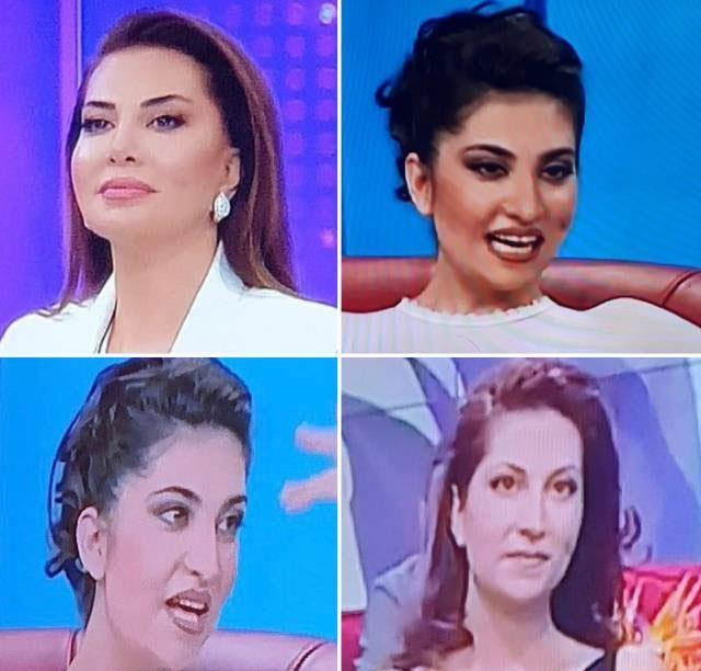Ebru Yaşar'dan estetik itirafı: Değişmeseydim şimdi yüzüme bakmazlardı