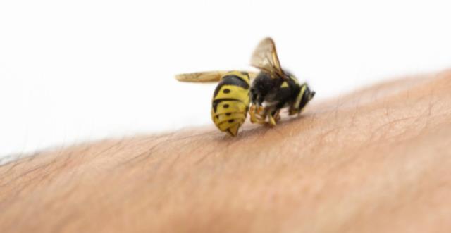 Arı sokmasına ne iyi gelir? Arı sokması nasıl geçer?