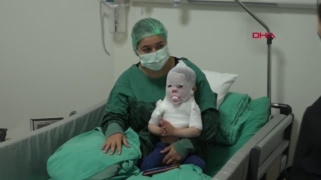 ESKİŞEHİR Kaynar suyla haşlanan Beril bebek Yanık Merkezi'nde tedavi altında