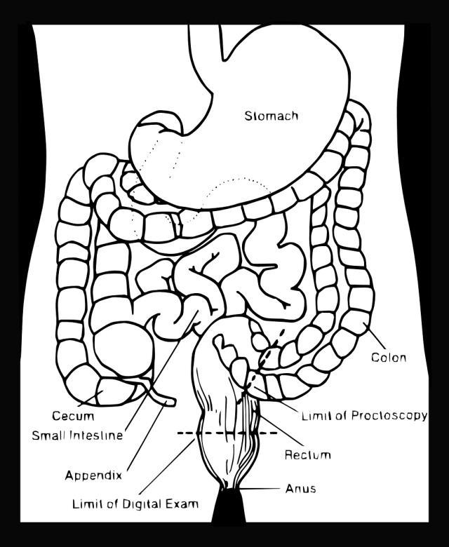 Apandisit nerede? Apandisit (Apandis) nerede olur? Apandisit ağrısı nerede olur, hangi bölgede? Apandis vücudun neresinde?