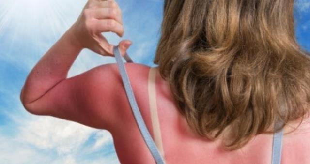Güneş yanığına ne iyi gelir? Güneş yanığını geçiren yöntemler nelerdir?