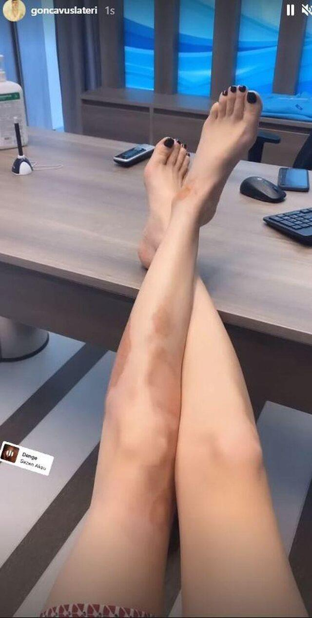 Üzerine kaynar su dökülen Gonca Vuslateri, yanık bacağının son halini gösterdi