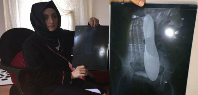 Kadının karnında unutulan mala için hastane 82 bin lira tazminat ödeyecek