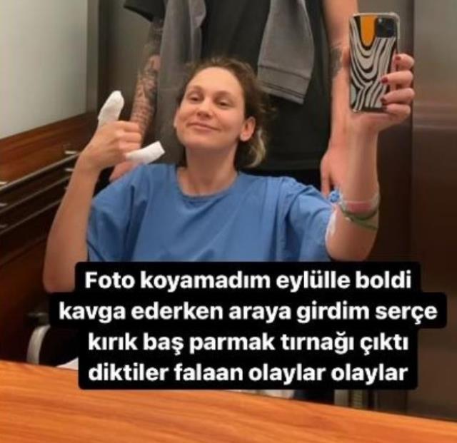 Köpek kavgasının arasında kalan Farah Zeynep Abdullah'ın parmağı kırıldı