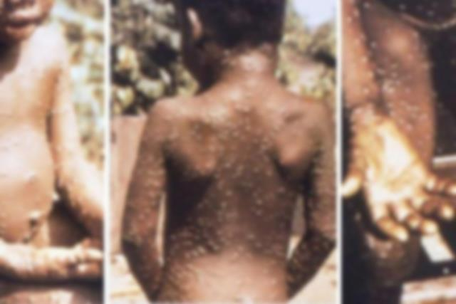 Korona bitmeden yeni kabus! İşte dünyayı tedirgin eden Monkeypox virüsünün en yaygın belirtileri