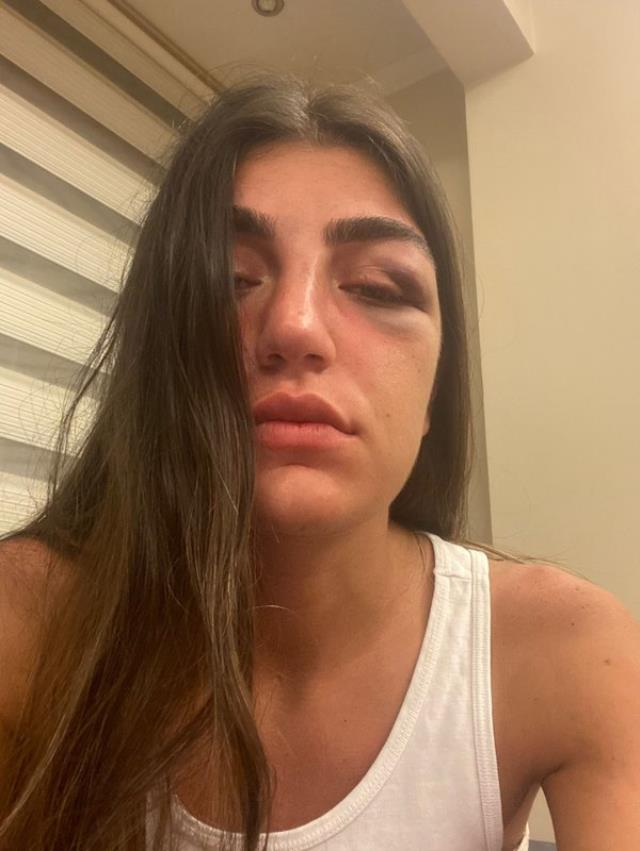 Manken Gizem Akbaş, eğlence kulübünde eski sevgilisi tarafından acımasızca dövüldü! O anlar anbean kaydedildi