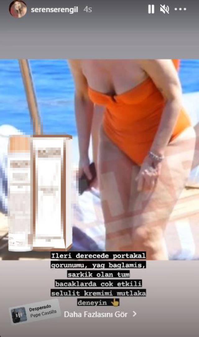 Seren'den kavga çıkaracak Gülben Ergen paylaşımı: İleri derecede portakal görünümlü bacaklarda etkili