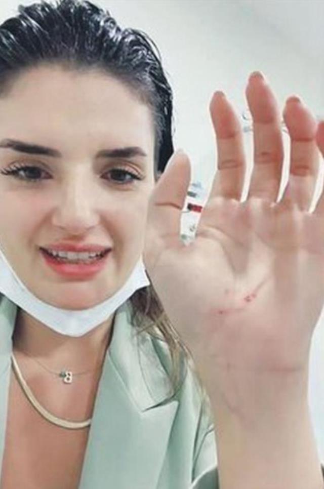 Şarkıcı Begüm Polat, kadın komşusunun tekmeli yumruklu saldırısına uğradığı için şikayetçi oldu