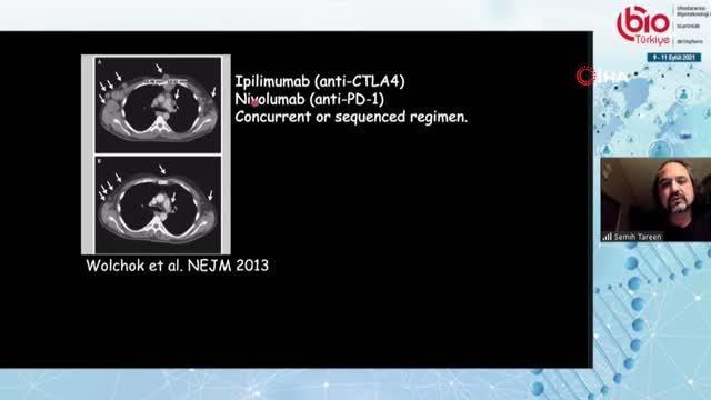 Kanserde gen aktarımıyla tedavi üretiliyor