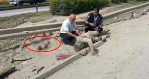 Korkunç kaza! Kopan bacağının yanında yardım bekledi