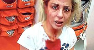 İstanbul'un göbeğinde şoke eden olay: Taciz edip öldüresiye dövdüler