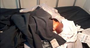 Talihsiz bebek bir an önce tedavi edilemezse ölecek