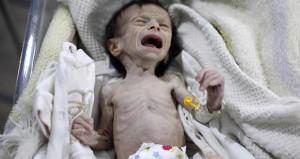 Bu fotoğraf Suriye'de çekildi! Açlıktan bebeğin kemikleri sayılıyor