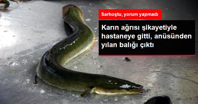 Karın Ağrısı Şikayeti ile Hastaneye Giden Adamın Anüsünden Yılan Balığı Çıktı