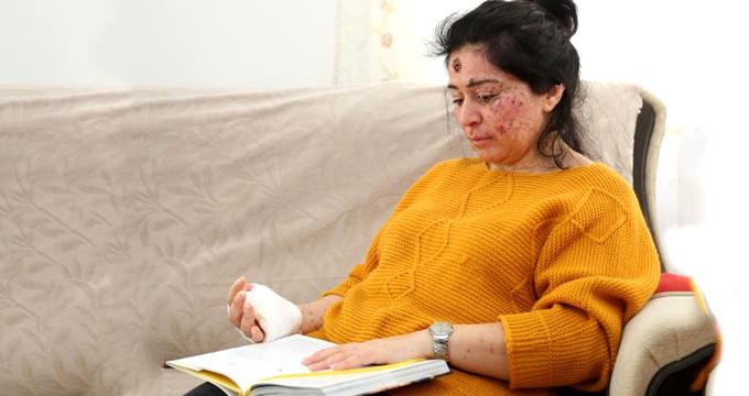 Hasta kadın, meraklıların soruları yüzünden evden çıkamıyor