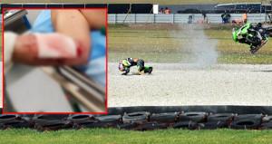 Kenan Sofuoğlu 257 km hızla kaza yaptı! İşte son durumu