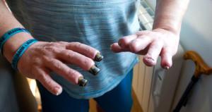 Çocuklarıyla oynarken et yiyen bakteri kaptı, parmaklarını kaybetti