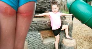 Aileler dikkat! 4 yaşındaki kızın oyun parkında derisi yüzüldü