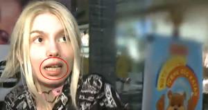 Aleyna Tilkinin dişleri sosyal medyada alay konusu oldu!